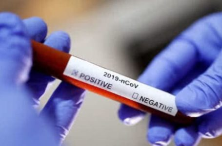 ГК «Ренова» купила для Ростовской области экспресс-тесты на коронавирус